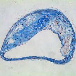 Dangerous plaques in blood vessels rupture by overproducing protein-busting enzymes