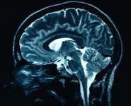 Dementia, high blood pressure and brain blood flow may be linked