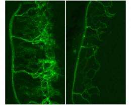 Scientists reveal new targets for anti-angiogenesis drugs