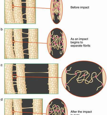 Fundamental Discovery About the Fracture of Human Bone: It's All in the 'Glue' c