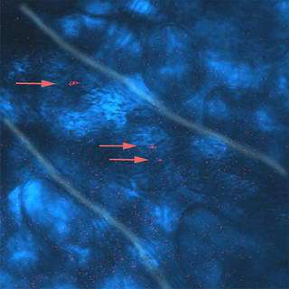 Gold nanorods brighten future for medical imaging