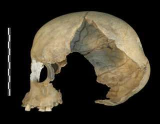 Petera skull