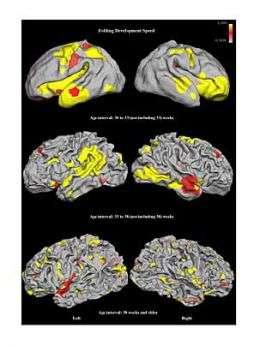 MIT model helps researchers 'see' brain development