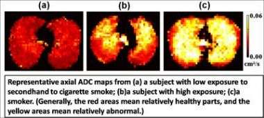 Secondhand smoke damages lungs, MRIs show