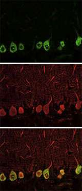 Breakthrough in cell-type analysis offers new ways to study development and disease