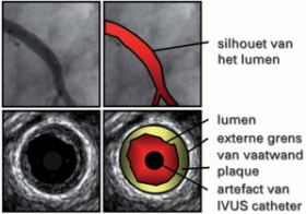 Aggressive lowering of cholesterol has positive impact in atherosclerosis