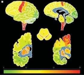 ALS Disease Protein