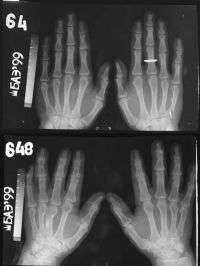 Bones and Aging