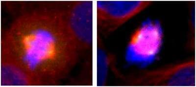 CHFR Gene Regulates Mitotic Spindle