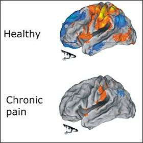 Chronic Pain Harms the Brain