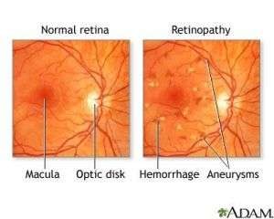 Identifying abnormal protein levels in diabetic retinopathy