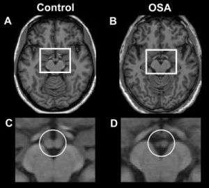 Memory loss linked to common sleep disorder