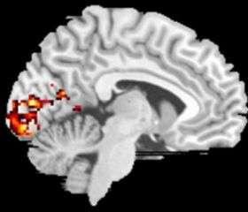 MRI of Preferred Retinal Location