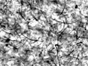 Shear Ingenuity: Tweaking the Conductivity of Nanotube Composites