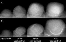 New technique images tumor vessel leakiness to predict breast cancer chemotherapy outcome