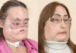 Face transplant recipient: 'I'm not a monster' (AP)