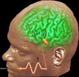 Researchers document how brain computes language