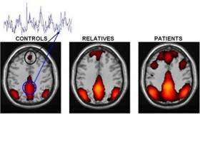 Altered brain activity in schizophrenia may cause exaggerated focus on self