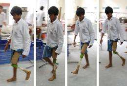 Cool product: $20 artificial knee for patients in the developing world