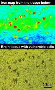 Iron Map of Brain Tissue