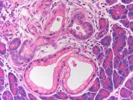 Possible origins of pancreatic cancer revealed