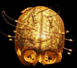 Rare procedure documents how the human brain computes language