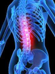 Simple bedside test improves diagnosis of chronic back pain, could guide treatment