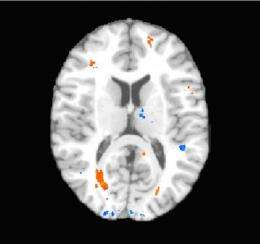 Strong link found between concussions and brain tissue injury