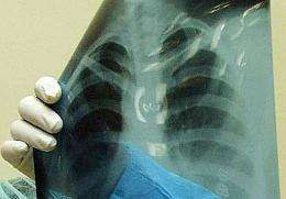 The x-ray machine has revolutionised how doctors detect disease and injury