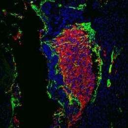 Tumor suppressor pulls double shift as reprogramming watchdog