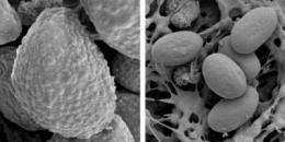Size matters -- in virulent fungal spores -- and suggests ways to stop a killer