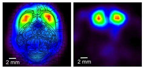 Miniature 'wearable' PET scanner ready for use (w/ Video)