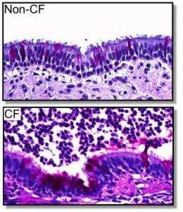 Pig model of cystic fibrosis improves understanding of disease