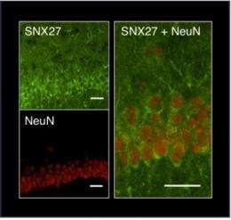 Scientists crack molecular code regulating neuronal excitability