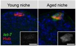 Researchers find a way to delay aging of stem cells