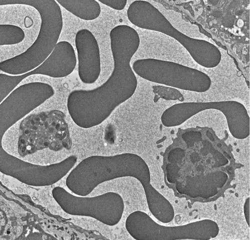 The minimal microbe