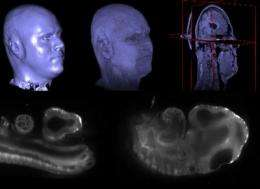 An open platform revolutionizes biomedical-image processing