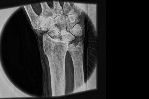 A leap forward in X-ray technology