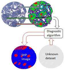 Molecular pathology via IR and Raman spectral imaging