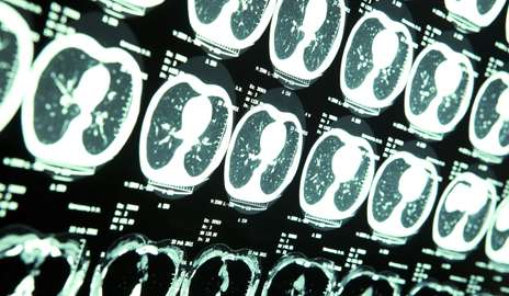 Brain-penetrating particle attacks deadly tumors