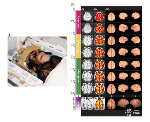 Cerebral development in chimpanzees: Human intelligence secrets revealed by chimp brain