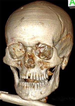 Iceman Ötzi had bad teeth