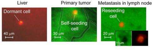 New technology using florescent proteins tracks cancer cells circulating in the blood