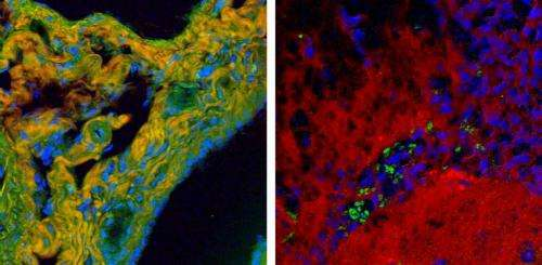 Enhanced NIST instrument enables high-speed chemical imaging of tissues