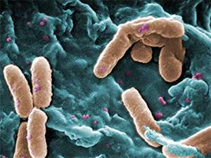 Microbiology: Pushing back against drug-resistant bugs