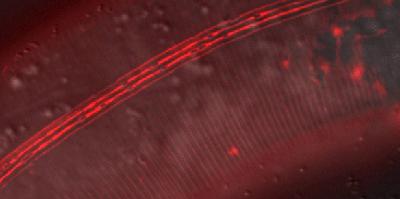 Mycotoxin protects against nematodes