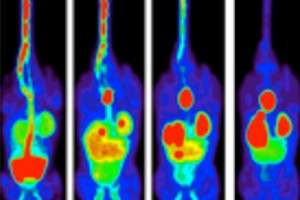 New method to analyse how cancer cells die