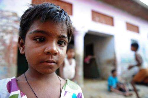 Prachi, who suffers from a skin disease claimed to be caused by polluted water from the river Ganges, poses outside her home in