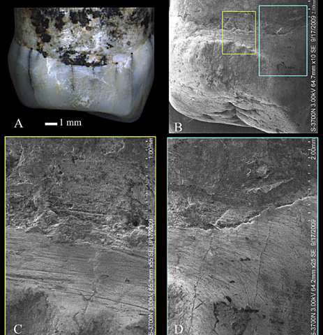 Tooth-picking behavior identified in the middle Pleistocene hominins of Eastern China