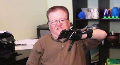 Low-cost 3D printed hand suits man for daily needs (w/ video)
